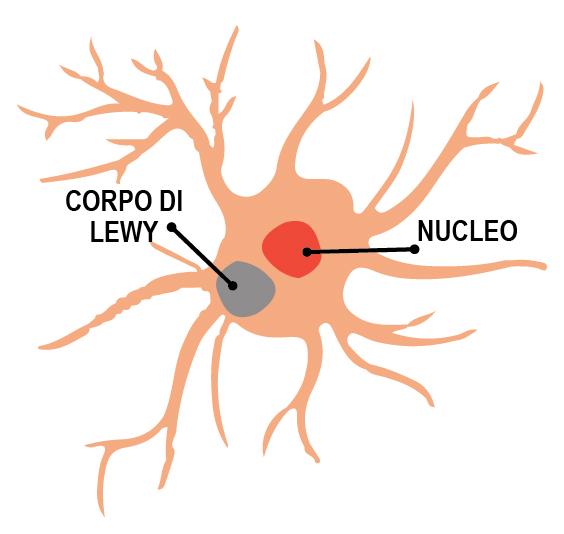 schema corpi di Lewy e nucleo