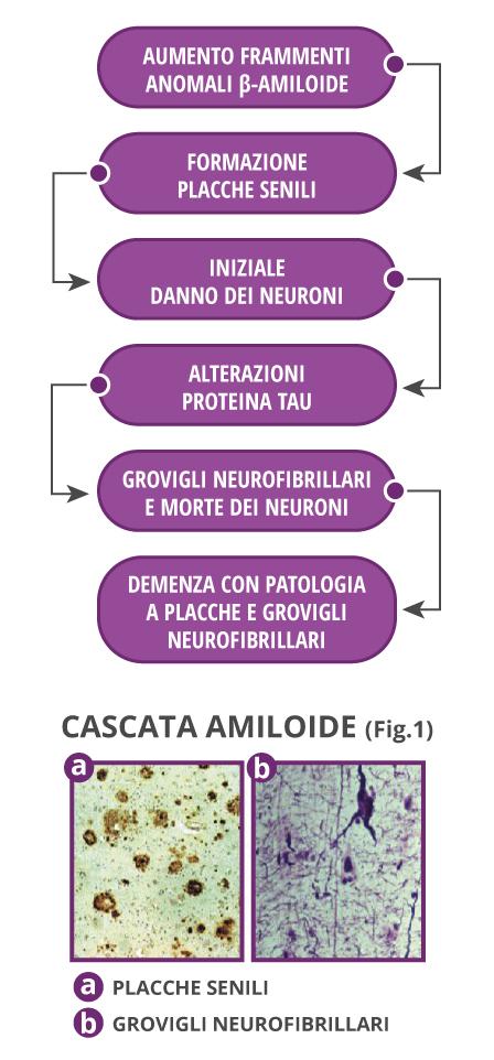Cause dell'Alzheimer: deposito beta-amiloide, formazione delle placche senili, alterazione della proteina Tau, morte dei neuroni.